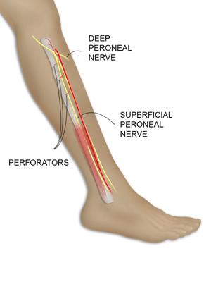 Vascularized Fibula Flap