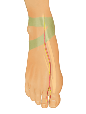 Great Toe Transplantation