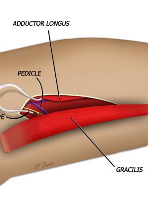 The Gracilis Flap