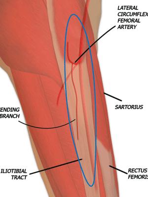 Tensor Fascia Lata (TFL) muscle Flap